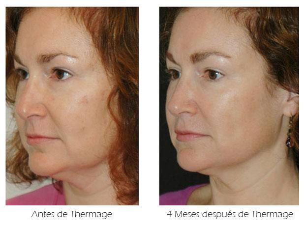 Thermage de rostro. Fotografía de antes y 4 meses después